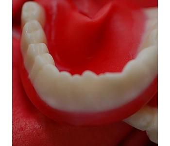 Dentures or False Teeth 3 Kg Bulk Pack